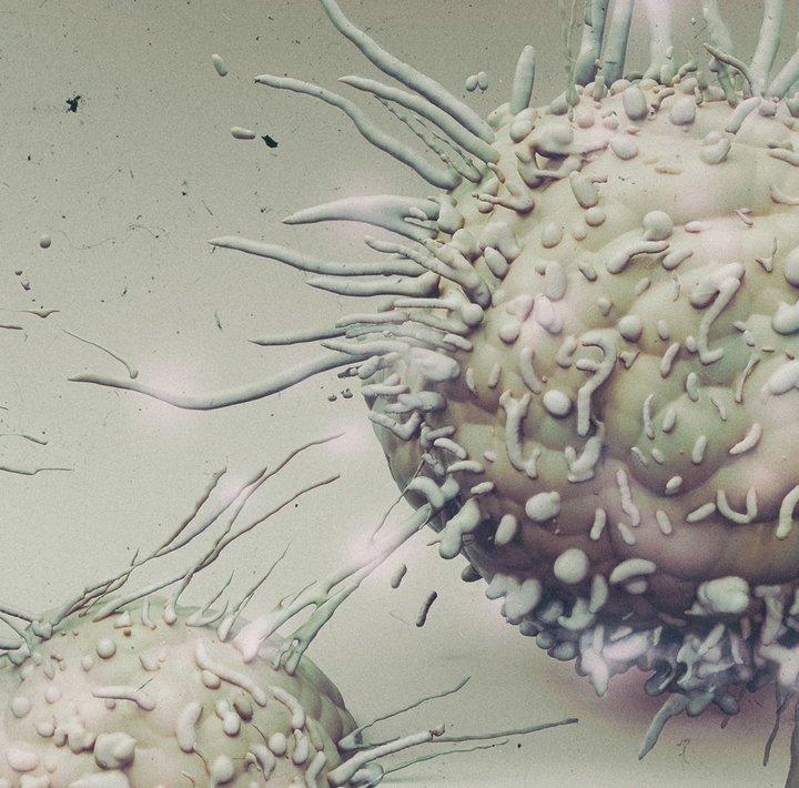 NastPlas_Cancer cell.jpg